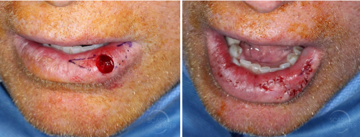 Lower-lip-mucosal-defect-myomucosal-island-flap-partial-island-flap-orange-county-skin-cancer