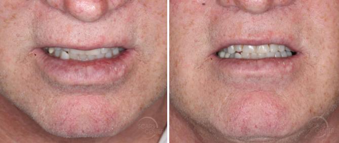 Lower-lip-mucosal-defect-myomucosal-island-flap-partial-island-flap-orange-county-skin-cancer1