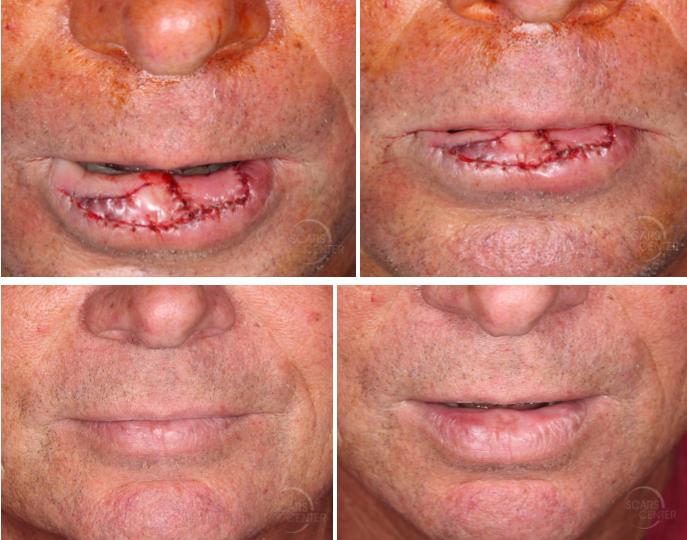 Lower-lip-mucosal-defect-myomucosal-island-flap-partial-island-flap-orange-county-skin-cancer3