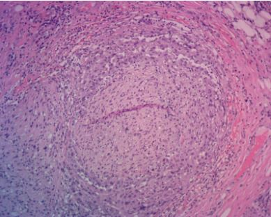 SCC-Scalp-Newport-Beach-Mohs-and-Reconstruction-perineural-invasion-dermatopathology
