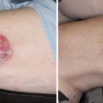 Large Thigh BCC Treated with Radiation