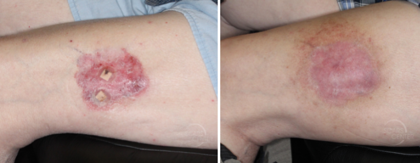 Thigh-BCC-radiation-oncology-radiotherapy-orange-county-skin-cancer