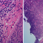 Cutaneous B-Cell Lymphoma of the Ear