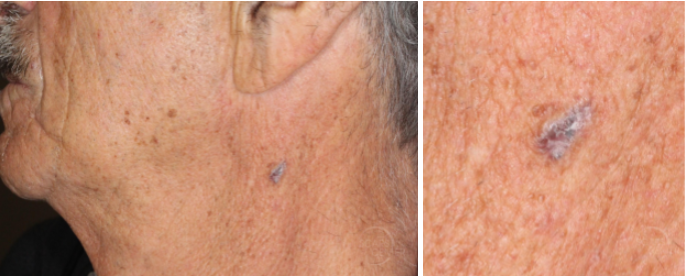 pigmented-bcc-neck-seborrheic-keratosis-orange-county-skin-cancer