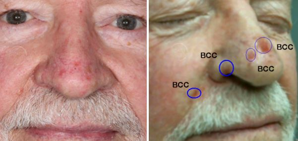 BCC-SRT-superficial-radiation-therapy-orange-county-skin-cancer-basal-cell-carcinoma