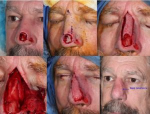 Recurrent-SCC-nose-rhinectcomy-mapping-biopsy-SCARS-center-Mohs-excision-infiltrative-squamous-cell