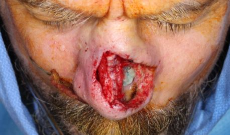 Recurrent-SCC-nose-rhinectomy-mapping-biopsy-SCARS-center-Mohs-excision-infiltrative-squamous-cell
