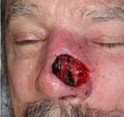 Recurrent-SCC-nose-rhinectcomy-mapping-biopsy-SCARS-center-Mohs-excision-infiltrative-squamous-cell5