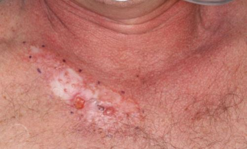 Upper-Chest-BCC-perineural-invasion-Mohs-and-closure-SCARS-center-wide-local-excision-SRT-radiotherapy-orange-county-skin-cancer