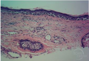melanoma-in-situ-serial-excisions-mohs-excision-platysma-myocutaneous-flap-mapping-biopsy-orange-county-skin-cancer-dermatopathology