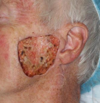 melanoma-in-situ-serial-excisions-mohs-excision-platysma-myocutaneous-flap-mapping-biopsy-orange-county-skin-cancer