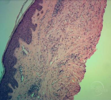 leiomyoma-complete-excision-sarcoma-leiomyosarcoma-skin-cancer-orange-county-pathoogy
