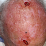 Anticoagulant Use in Cutaneous Surgery