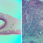 Cystic Squamous Cell Carcinoma of Forearm Skin