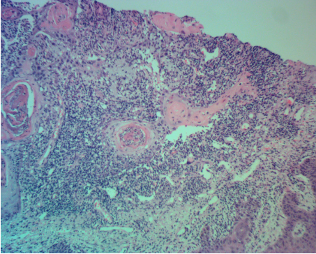 cystic-squamous-cell-carcinoma-of-forearm-keratoacanthoma-dermatopathology