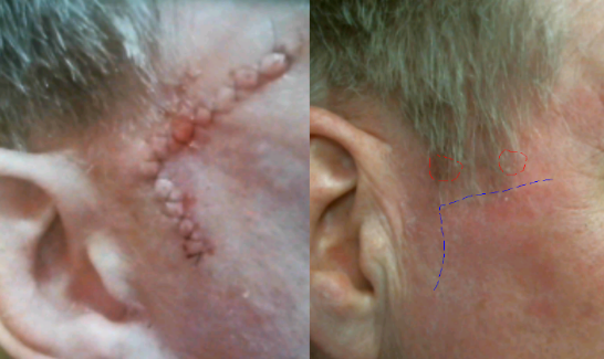 recurrent-bowens-disease-squamous-cell-carcinoma-topical-chemotherapy