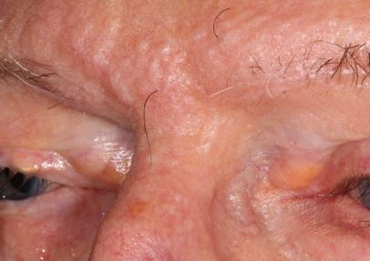 scleromyxedema-cutaneous-lesions-dermatopathology-spindle-cell-basal-cell-carcinoma-updated