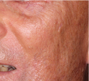 scleromyxedema-cutaneous-lesions-dermatopathology-spindle-cell-basal-cell-carcinoma