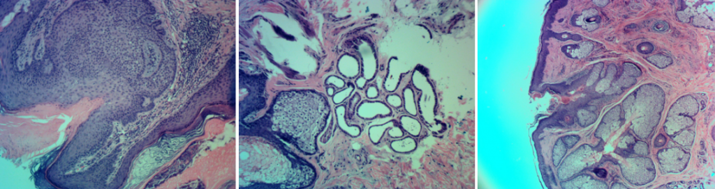sebaceous-nevus-of-jadassohn-orange-county-skin-cancer-histomicrograph