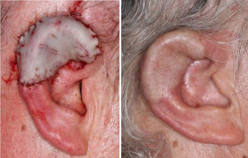 subtotal-ear-reconstruction-alloplast-tpf-flap-skin-cancer-orange-county1