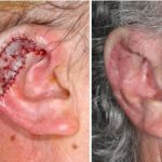 Subtotal Ear Reconstruction with Alloplast