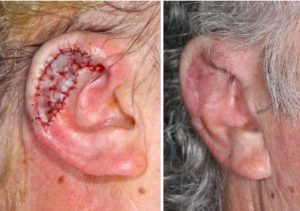 subtotal-ear-reconstruction-alloplast-tpf-flap-skin-cancer-orange-county