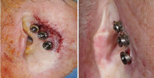 total-ear-reconstruction-with-osseointegrated-prosthesis-skin cancer-orange-county