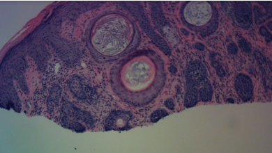 trichoepithelioma-histology-orange-county-skin-cancer-lateral-nasal-island-desmoplastic