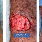Lethal Squamous Cell Carcinoma of the Forearm in a Lung Transplant Recipient