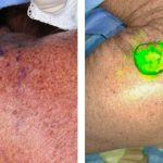 Near-Infrared Laser Lymphangiography Sentinel Lymph Node Biopsy for Melanoma