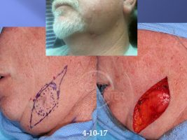 1SCARS-Center-Deep-Neck-Basal-Cell-Carcinoma-Recurrence-Skin-Cancer-Cheek (3) - Copy