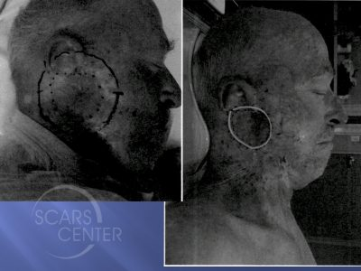 1SCARS-Center-Field-Cancerization-with-basal-cell-carcinoma-skin-cancer-forehead (3)