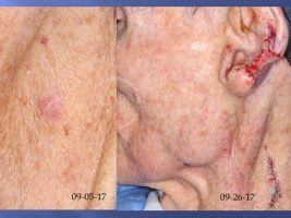 AFX to Pleomorphic Sarcoma of Neck - Treatment