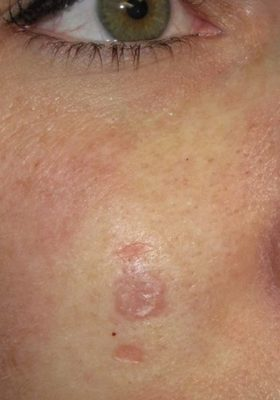 Basal-Cell-Carcinoma-Cheek-Skin-Cancer-and-Reconstructive-Surgery-Center-Orange-County