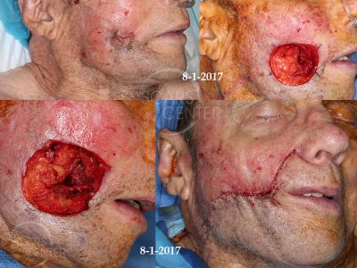 Deeply-Invasive-Squamous-Cell-Carcinoma-of-Cheek-Skin-Cancer-And-Reconstructive-Surgery-Foundation-Skin-Cancer-Conference-August-2017