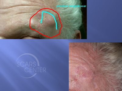 Forehead-Squamous-Cell-Carcinoma-Skin-Cancer-And-Reconstructive-Surgery-Foundation1