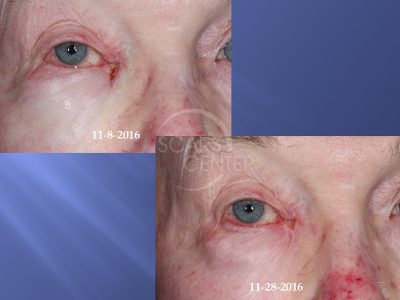 Medial-Canthus-Basal-Cell-Carcinoma-Follow Up-Skin-Cancer-And-Reconstructive-Surgery-Foundation1