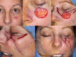 Melanoma-Left-Cheek-SCARS-Center-Case-6-Skin-Cancer-And-Reconstructive-Surgery-Center-Orange-County