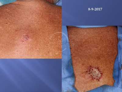 Melanoma-in-situ-of-Back-Skin-Cancer-And-Reconstructive-Surgery-Foundation-Skin-Cancer-Conference-August-2017