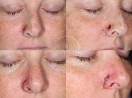 Reconstructive-Case-Alar-Island-Combination-Flap-Skin-Cancer-And-Reconstructive-Surgery-Foundation1