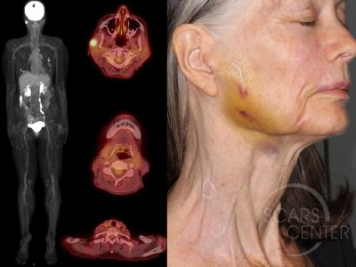 Recurrent-Melanoma-SCARS-Center-Case-2-Skin-Cancer-And-Reconstructive-Surgery-Center-Orange-County4