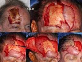 SCARS-Center-Recurrent-Extensive-Basal-Cell-Carcinoma-of-Forehead-skin-cancer-forehead-4