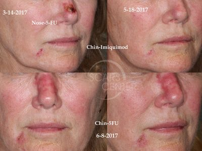 SCARS-Center-topical-5-fluorouracil-efficacy-in-basal-cell-carcinoma-skin-cancer1