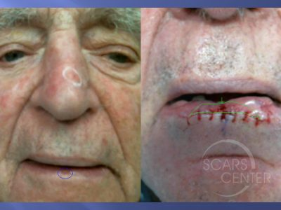 SCC-with-Atypia-SCARS-Center-Case-4-Skin-Cancer-And-Reconstructive-Surgery-Center-Orange-County2