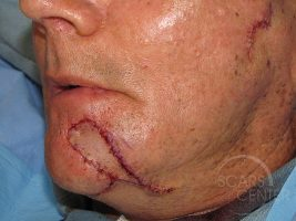 Skin-Cancer-And-Reconstructive-Surgery-Center-Skin-Cancer-Specialists-Intraoperative-Photos-WM-3