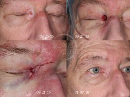 Skin-Cancer-And-Reconstructive-Surgery-Foundation-Patient-4-reconstructive-cases-medial-canthis-eyelid-reconstruction