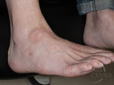 Skin-Cancer-And-Reconstructive-Surgery-Foundation-ankle-ganglion-cyst-1