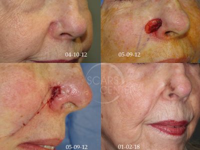 Skin-Cancer-And-Reconstructive-Surgery-Foundation-melanoma-with-recurrent-MIS1