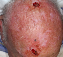 anticoagulant-use-in-cutaneous-surgery-scalp-squamous-cell-carcinoma-Mohs-and-reconstruction