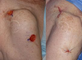 cerclage-closure-skin-cancer-Mohs-and-reconstruction-orange-county-
